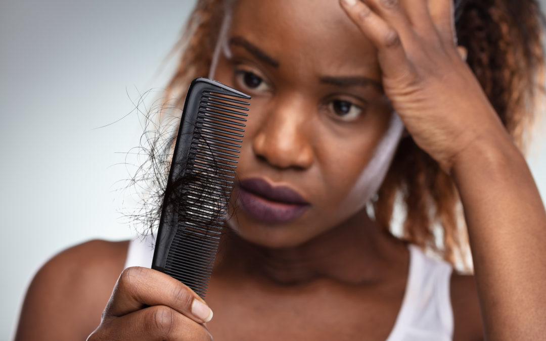 Fibroids and hair loss might be linked, according to a US study